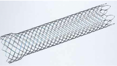 Colonic Stents